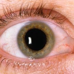 Discovering-Dry-Eye-Symptoms