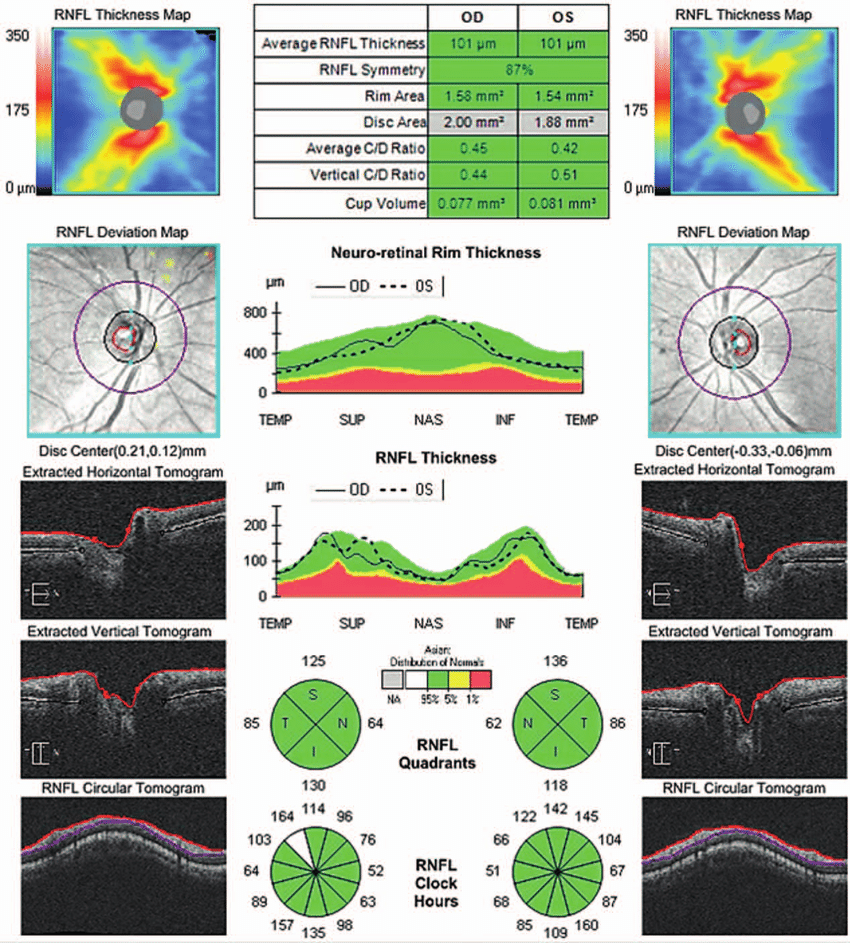 Optic nerve head (ONH) and retinal nerve fiber layer (RNFL) analysis