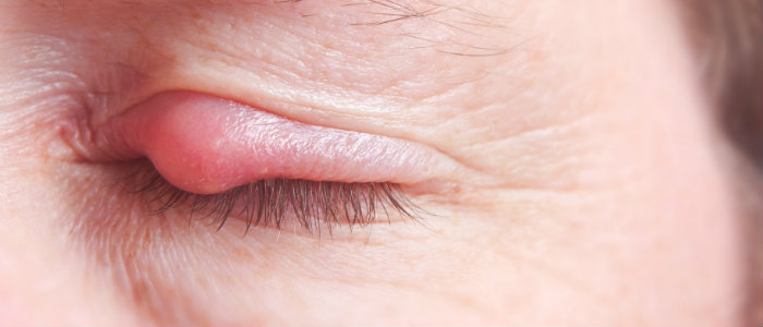 closed eye with sty, eyelid soreness may be caused by sty
